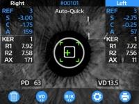 Auto Ref-Keratometer (OptoChek™ Plus)